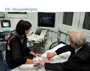 US-Vacuubiopsy1-300x236